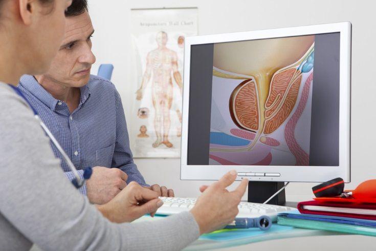 El cancer de prostata