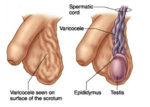 varicocele sintomas