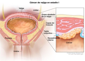 cancer de vejiga diagrama