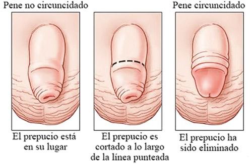 Como se ve el miembro viril después de la operación fimoza