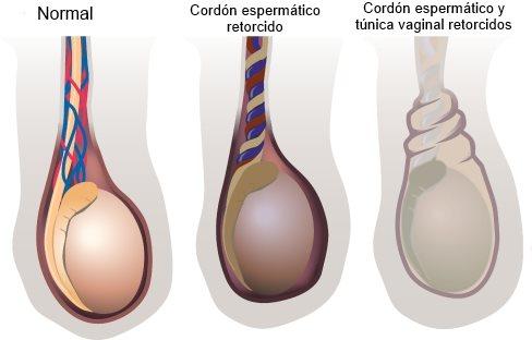 Torsión testicular? - Centro Especializado en Urología